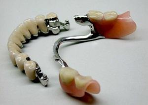 протезирование зубов виды какой протез лучше фото