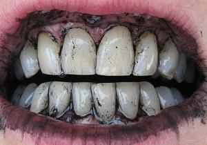 отбеливание зубов с помощью активированного угля отзывы