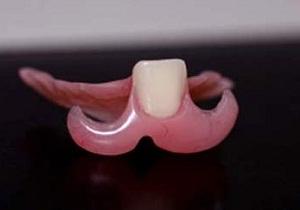 Протез-бабочка из акриловой пластмассы на 1-2 зуба
