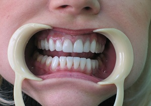 стоматолог ортопед что делает