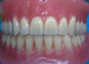 особенности зубных протезов из акриловой пластмассы
