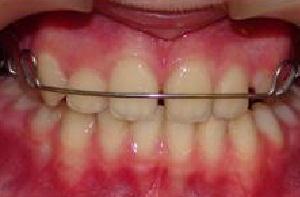 сколько стоит пластина для выравнивания зубов