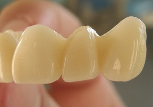 В каких случаях ставят коронки на зубы
