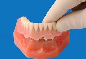 бесплатное протезирование зубов