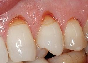 как избавиться от клиновидного дефекта зубов