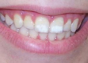 как избавиться от белых пятен на зубах у ребенку