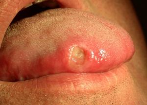 как лечить стоматит на языке