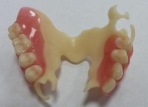 преимущества ацеталовых зубных протезов