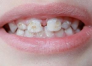 методы лечения кариеса молочных зубов у детей