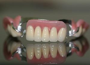 особенности бюгельных протезов на верхнюю челюсть
