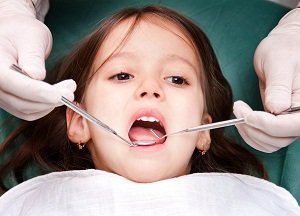 как проводят серебрение зубов у детей