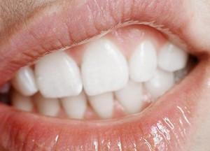 как лечить десну, отошедшую от зуба