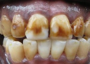 как лечить флюороз зубов