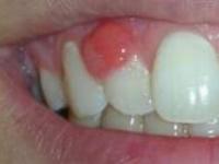 опухла десна около зуба