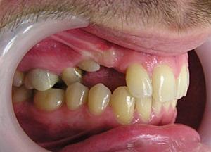 симптомы и лечение ретинированного зуба