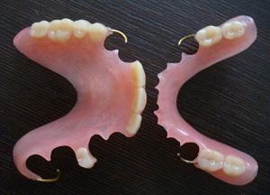 как выбрать съемные протезы при частичном отсутствии зубов