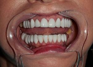 технология установки зубных коронок