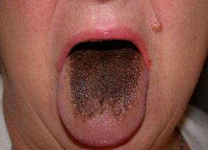 как избавиться от коричневого налета на языке