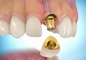 Коронки на импланты зубов виды и цены