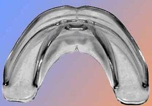 трейнеры для зубов отзывы