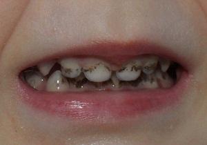 налет на зубах причины