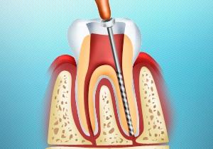 депульпирование зуба последствия