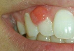 После лечения зуба не могу широко открывать рот