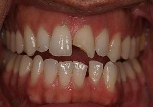Откалываются зубы, что делать, если откололся кусочек зуба 62
