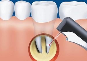 резекция верхушки корня зуба видео