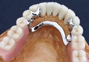 бюгельные зубные протезы отзывы цена