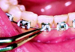 скобы на зубы цена