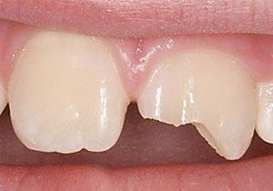 Откалываются зубы, что делать, если откололся кусочек зуба 99