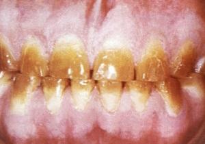 гипоплазия эмали фото