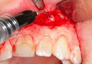 резекция верхушки корня зуба отзывы