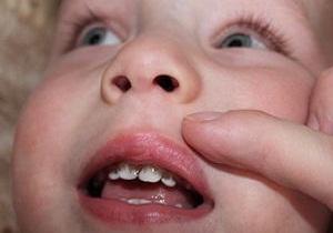 налет на зубах фото