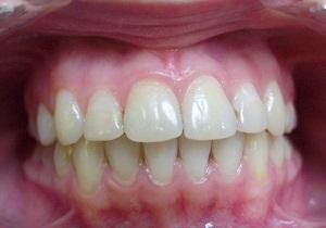 прикус зубов правильный и неправильный фото