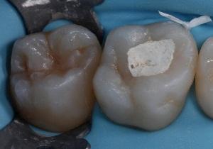сколько можно ходить с мышьяком в зубе