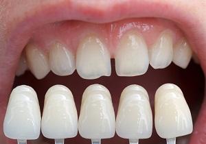 щель между передними зубами как исправить