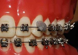 стоматологический воск для брекетов купить