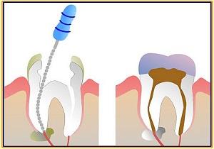 депульпирование зуба что это такое