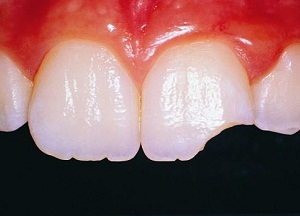 методы восстановления отколовшегося зуба