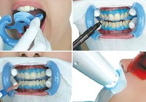 фотоотбеливание зубов до и после