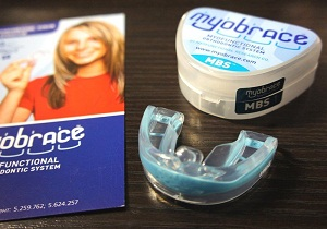 Трейнеры для зубов что это такое