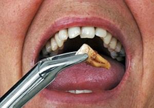 температура после удаления зуба мудрости