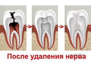 депульпирование зуба цена