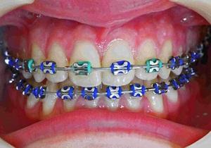 Врач ортодонт что лечит в стоматологии