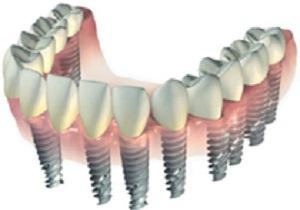 зубные импланты противопоказания для установки