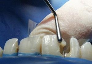 сколько держать мышьяк в зубе
