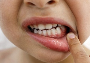 Мазь для дёсен от воспаления взрослым воспаление десен у детей