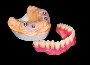преимущества покрывных зубных протезов